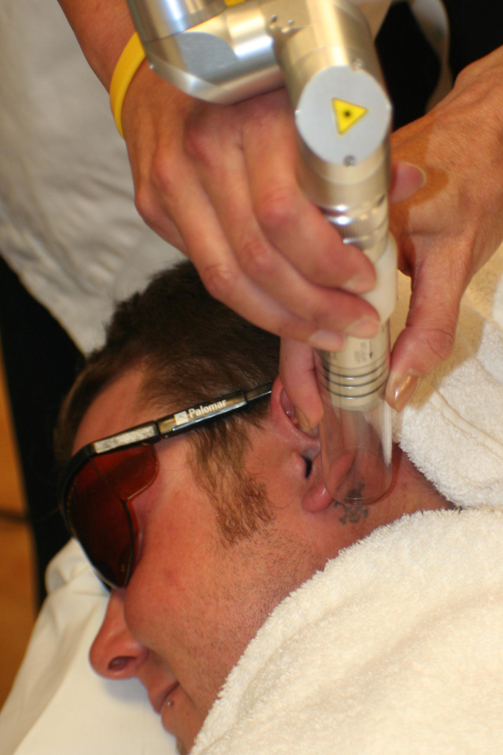 Laser Tattoo Removal Training | Tattoo Removal | NLI