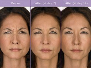 botox injection training in dallas