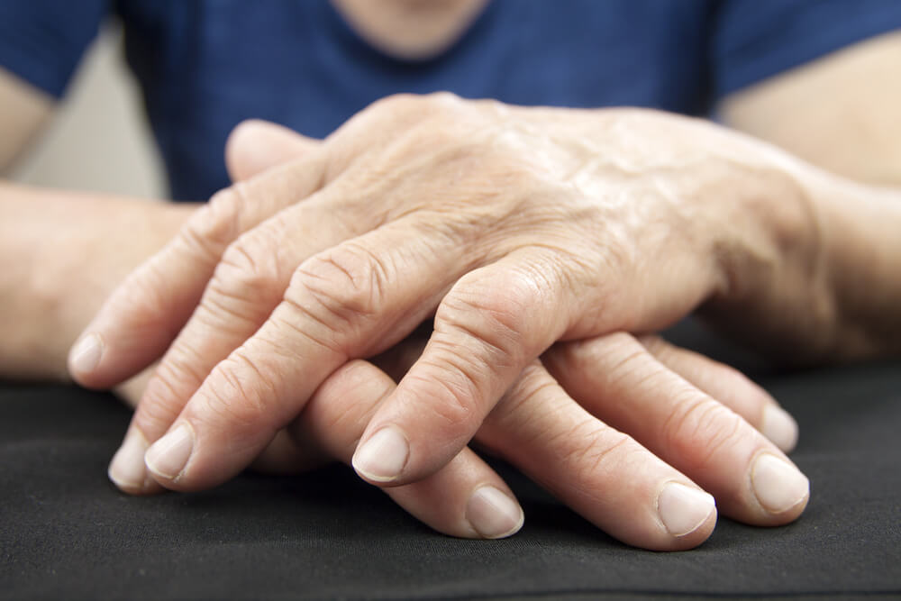 botox for arthritis