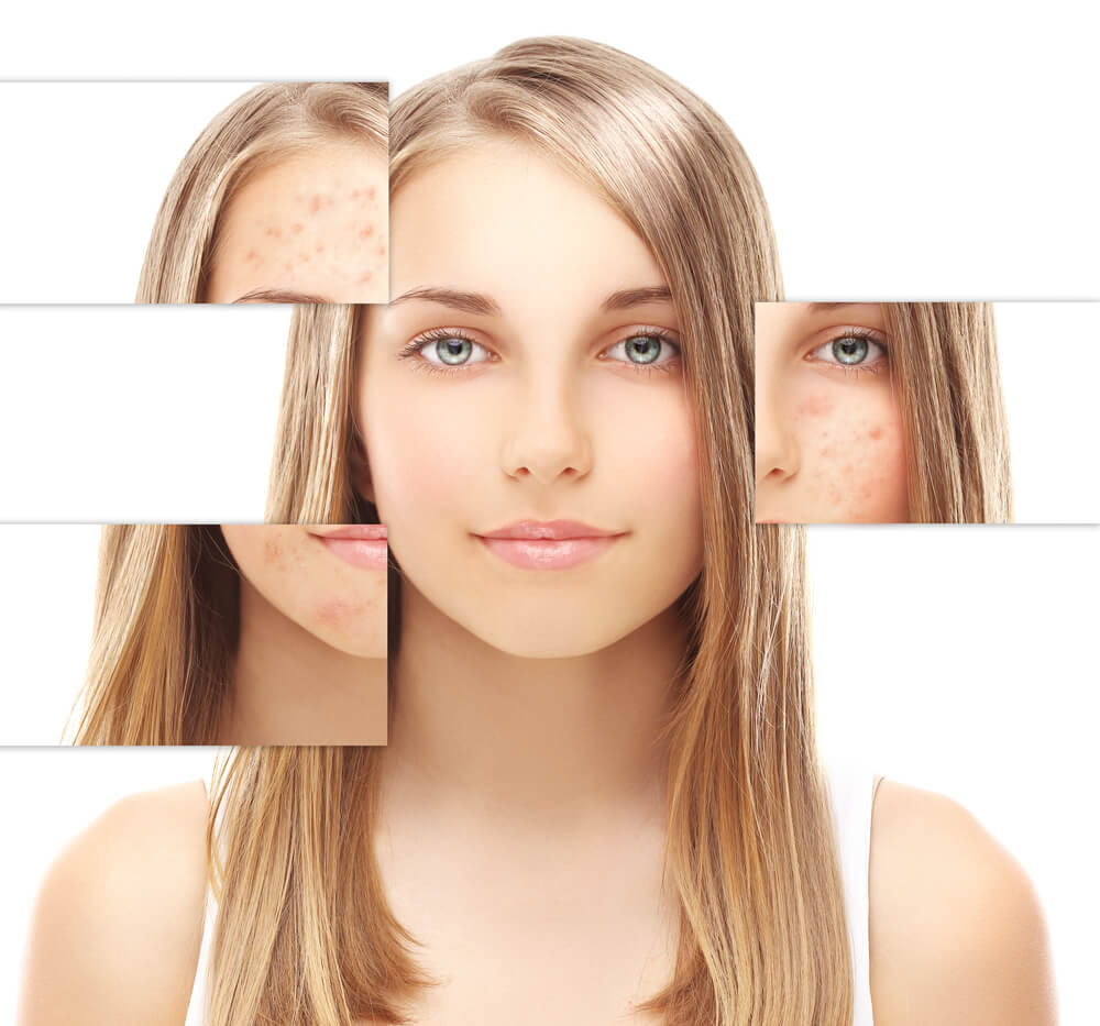 laser acne