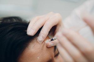 Advanced Botox Training