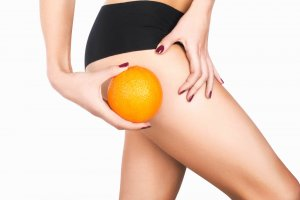 Cellulite Reduction for Toned Body