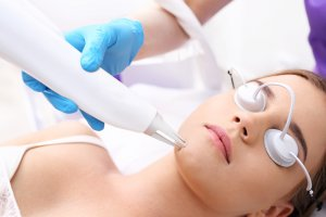Cosmetic Treatments For Acne Scars