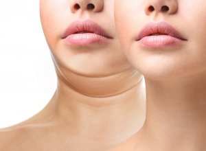 Facts About Kybella