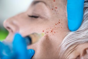 PRP Facial Training For Medical Professionals