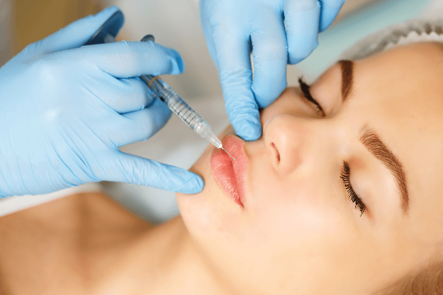 lip injections for fuller lips performed on a woman