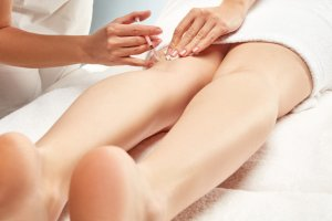 sclerotherapy training for nurses