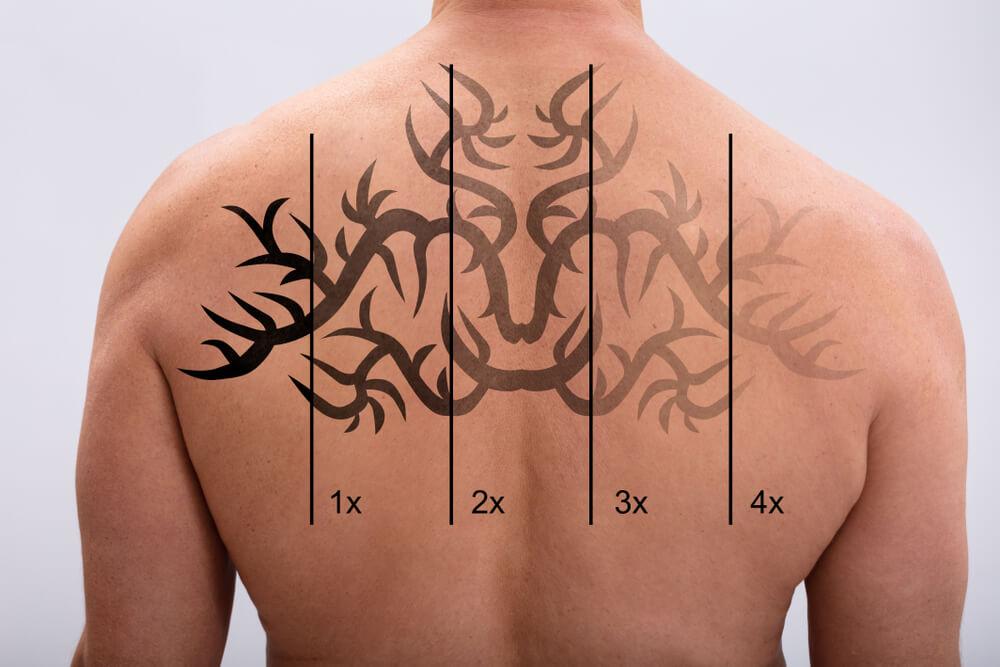 Online Training Tattoo Removal Phoenix
