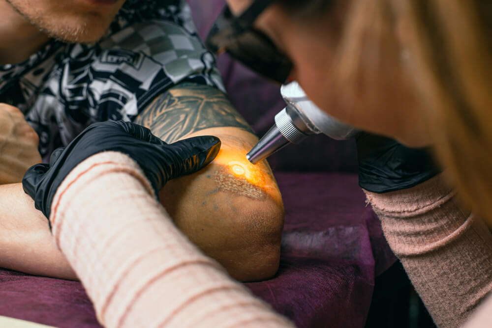 school phoenix tattoo removal