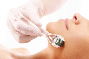 Expand Your Medical Aesthetic Services With Microneedling Training