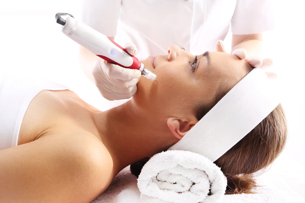 Why Laser Techs Need Microneedling Training