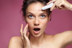 How to treat acne as a medical aesthetician